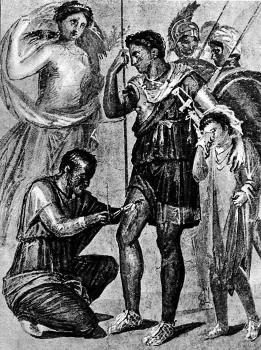 Раненый Эней. Настенная живопись из Помпеи. Национальный музей, Неаполь. На Энее поверх короткой туники надет плащ хламис, который переброшен через плечо; на ногах сандалии. На воинах, стоящих за ним, надеты характерные римские военные шлемы; на мужчине, лечащим Энея, надета туника с длинными рукавами